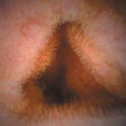 vékonybél kapszula endoszkóppal